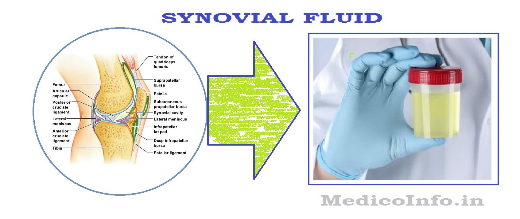 Preparate articulare fluide