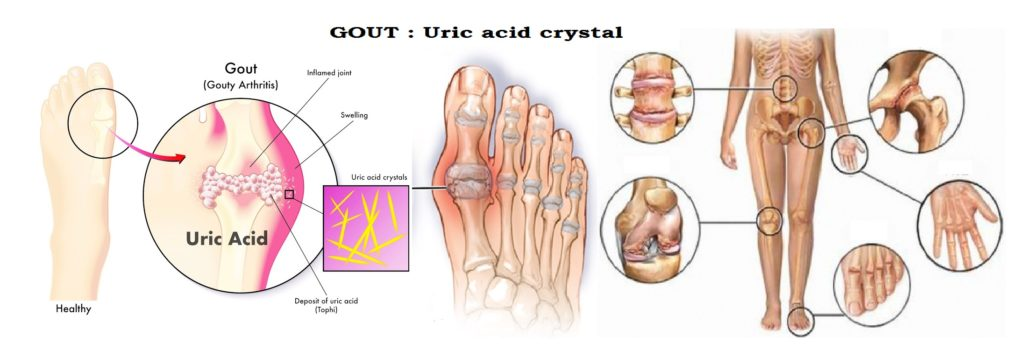 Gout-Uric acid Analysis : http://medicoinfo.org/gout-uric-acid-analysis/