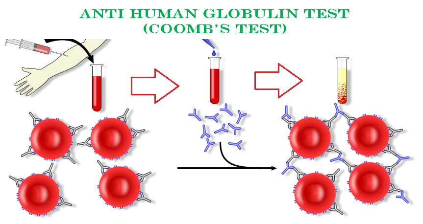 Anti Human Globulin Test (Coomb's Test) 4.9 (2467)