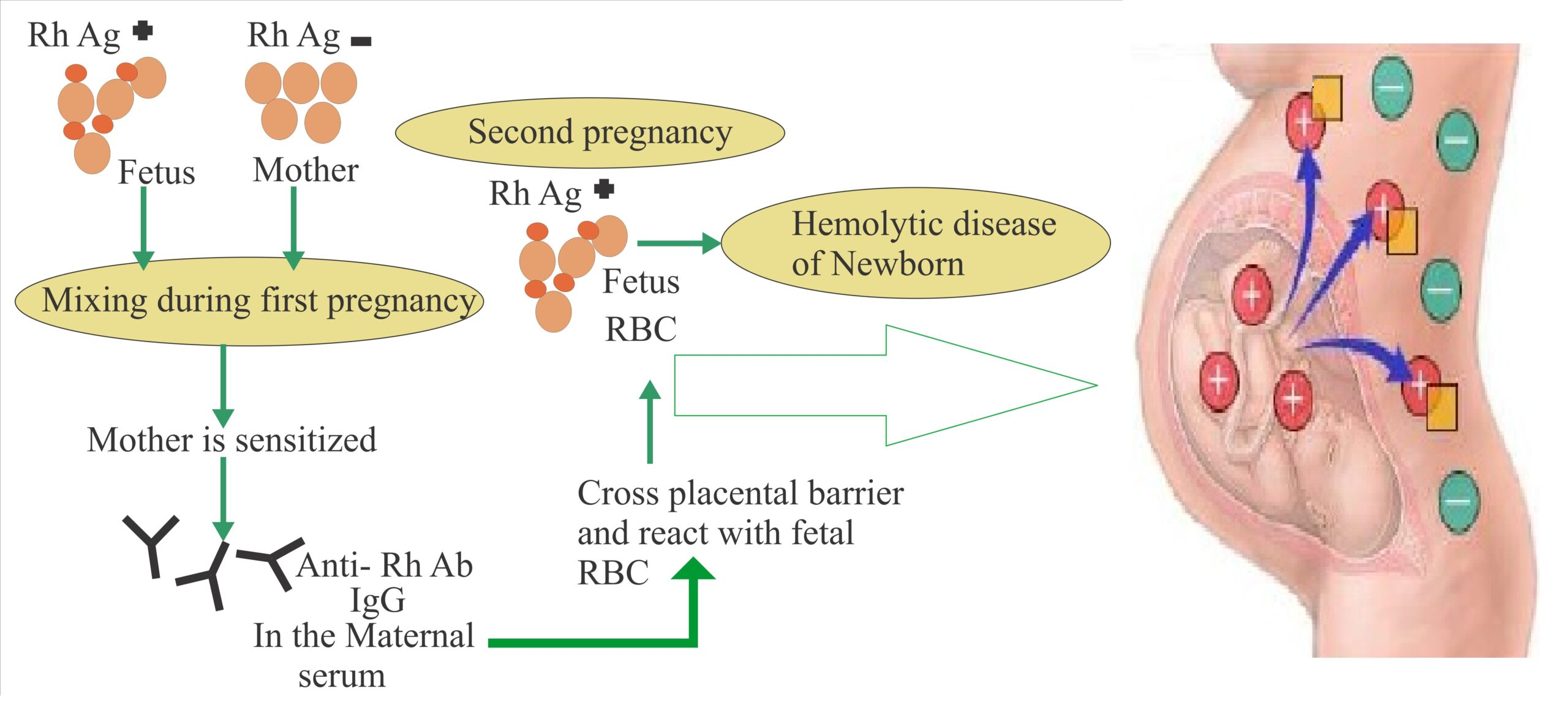 Blood Group and Pregnancy